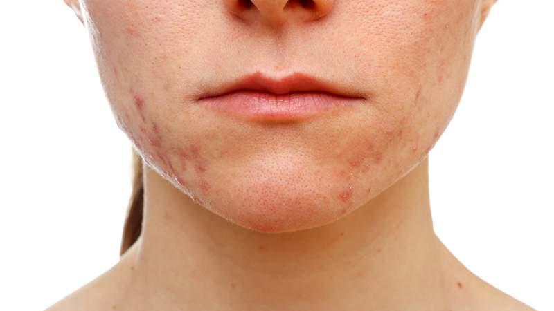3-Acne-Treatment