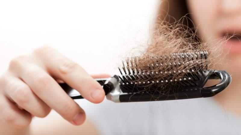 7-Hair-loss