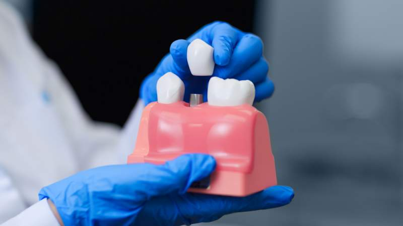 4 Myths About Dental Implants, Debunked