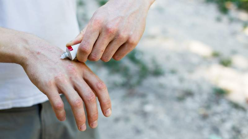 Psoriasis: Top Treatment Options for Flare-Ups