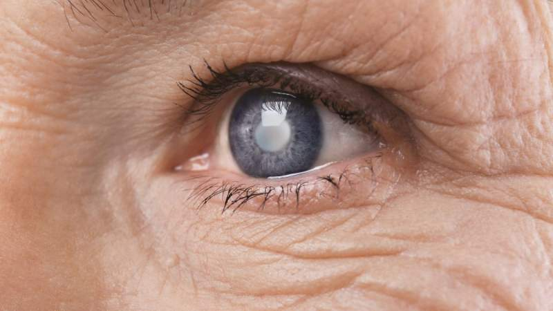 Cataracts Diagnosis and Treatment: When is it Time to Consider Surgery?