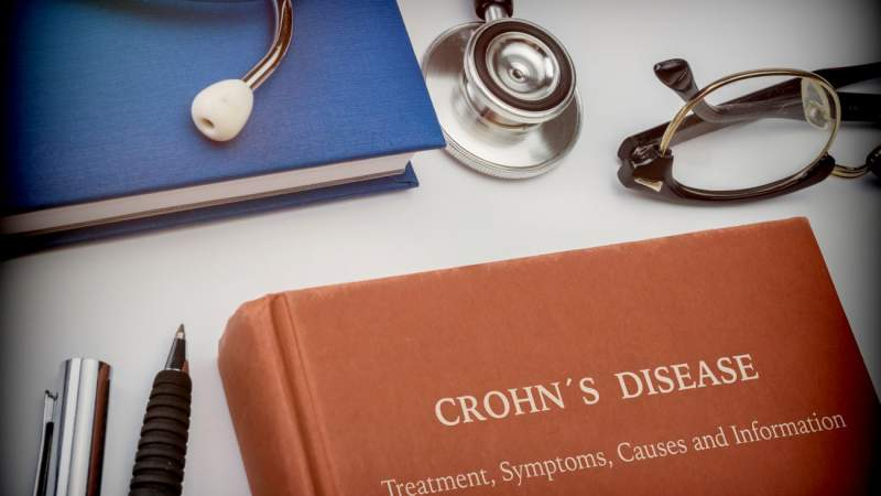 Crohn's Disease | Top Treatments and Natural Remedies