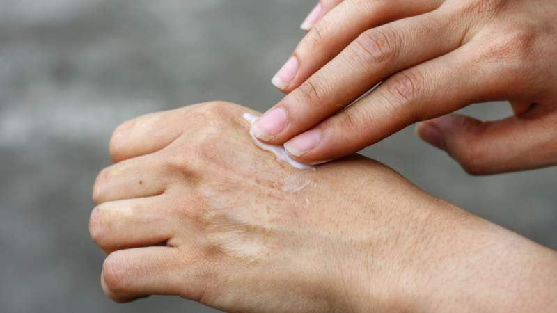 6 Over-the-Counter Creams for Arthritis