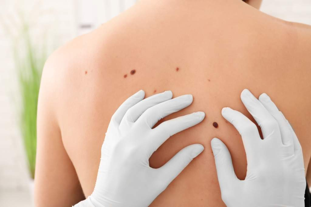 doctor examining mole on woman's back