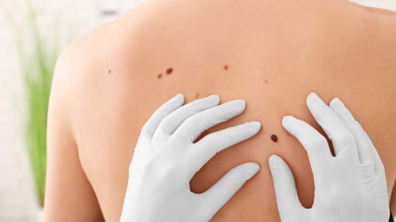 Everything You Need To Know About Skin Cancer