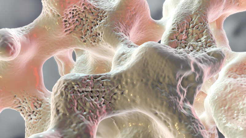 Medicare and Osteoporosis Treatments: What's Covered?
