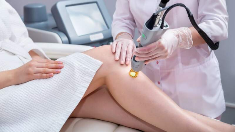 Why People Are Rushing to Get Laser Hair Removal
